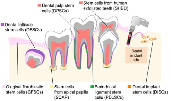 Culturing Human Dental Mesenchymal Stem Cells