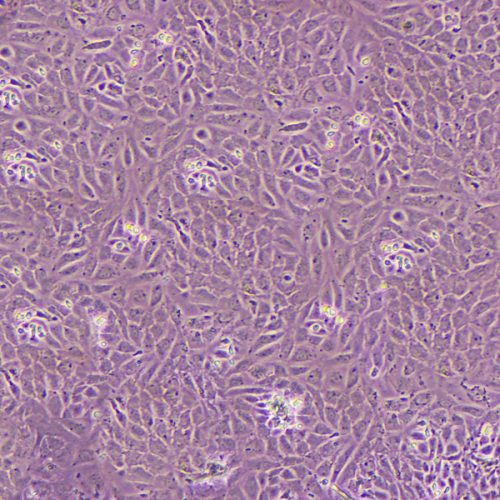 Primary cells: The good, the bad and the frustrating!