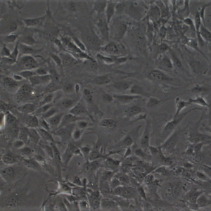 mouse skin fibroblasts_