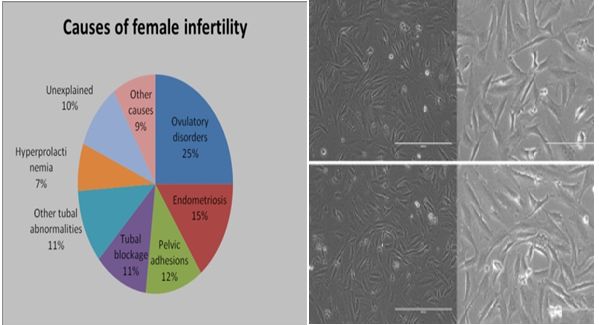 Culturing The Endometrial Cells To Assess Cancers And Reproductive Biology