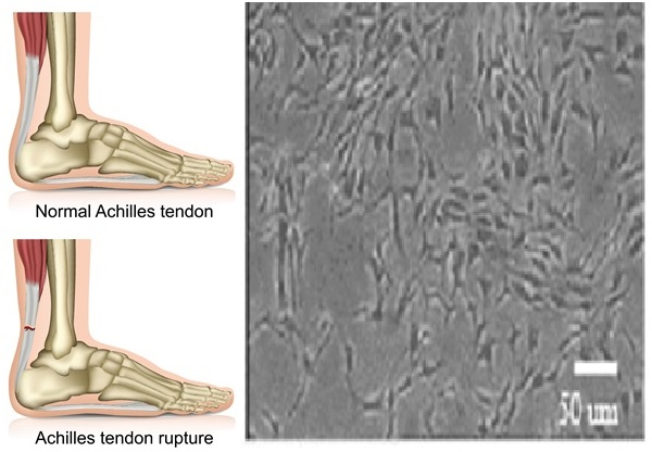 Culturing cells from the tendon to address tendon damage