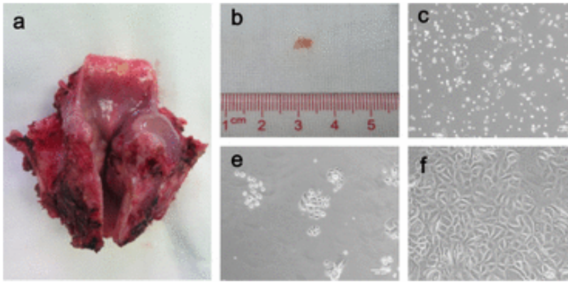 Culturing Cells Of The Larynx To Heal The Throat