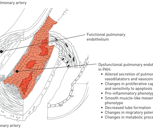 Culturing lung endothelial cells to target pulmonary hypertension and acute lung injury