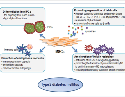 Mesenchymal Stem Cells For Diabetes – A Ray Of Hope
