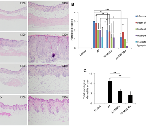 The Therapeutic Prowess Of Human Umbilical Cord-Derived Mesenchymal Stem Cells