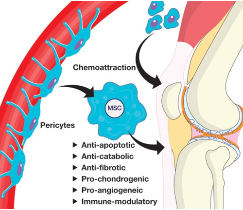 Mesenchymal and adipose Stem cells for osteoarthritis