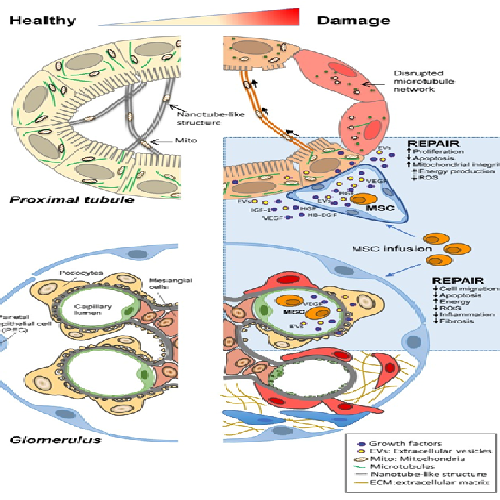Stem cells are a panacea for renal diseases