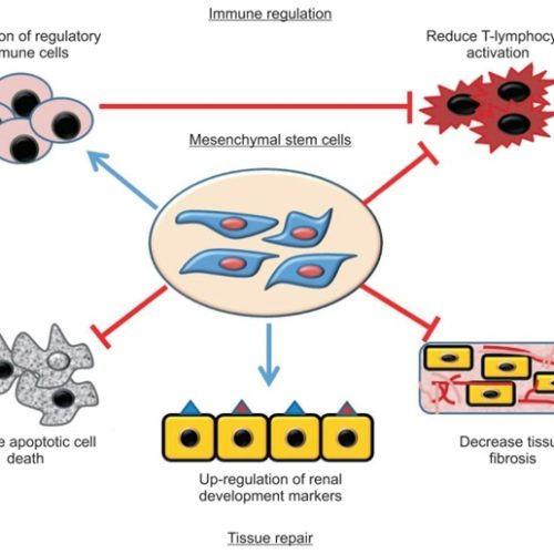 Mesenchymal Stem Cells For Healing The Kidney