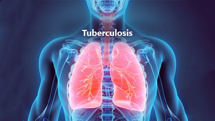 Mesenchymal stem cells weave magic for TB