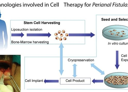 Mesenchymal Stem Cells for the Treatment of Crohn's disease