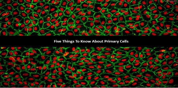 5 Things to Know about Primary Cells